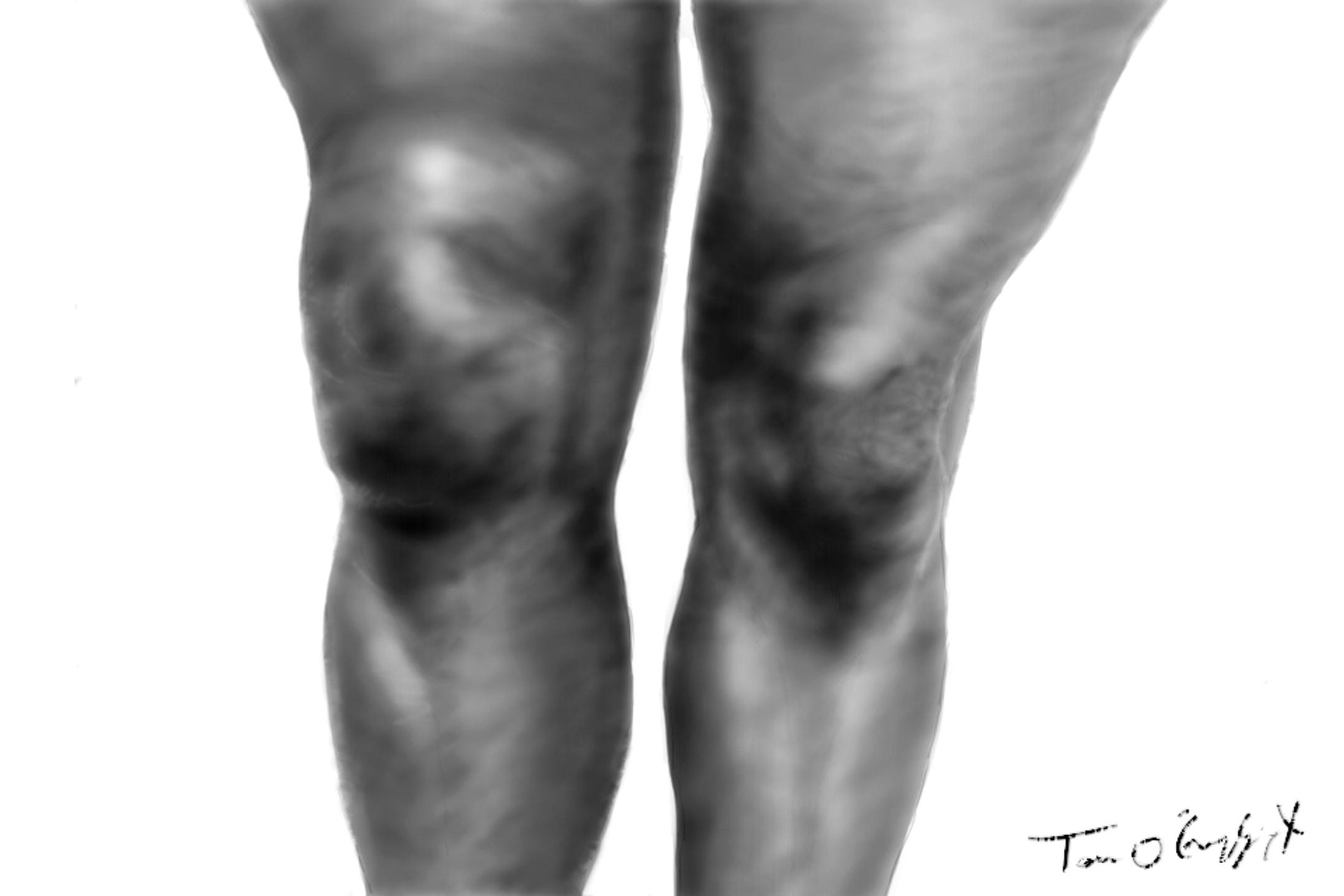 Epanchement de synovie et douleurs aux genoux
